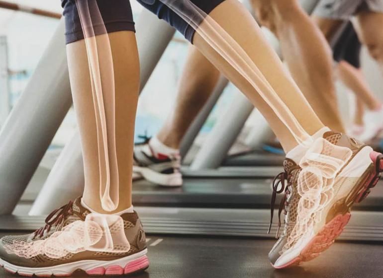 Osteoporose: sintomas, prevenção e tratamento